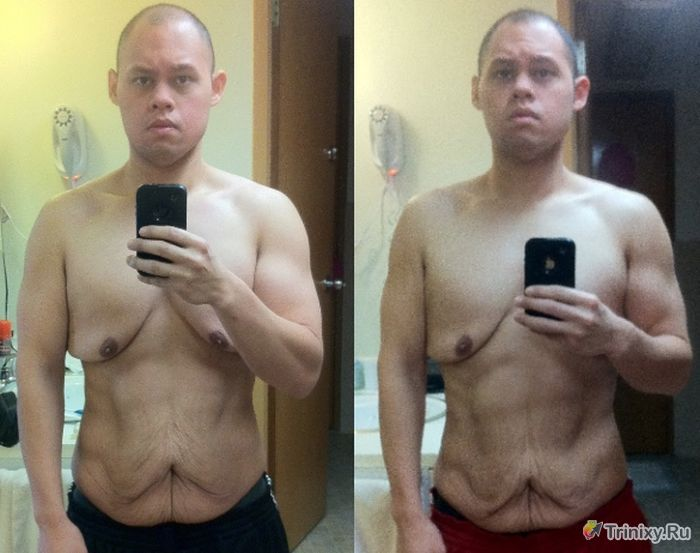 причины резкого похудения у подростков парня